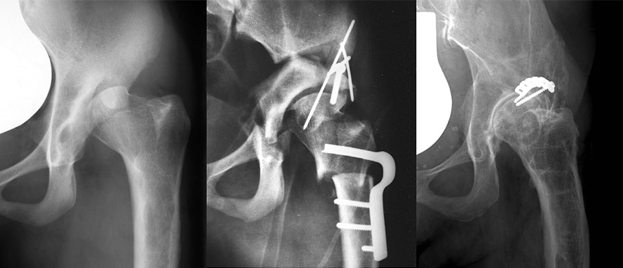 First case of periacetabular osteotomy (PAO)