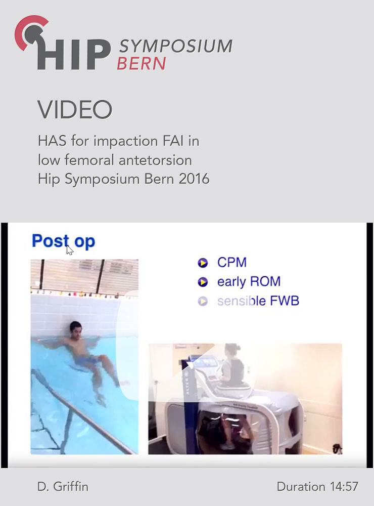 D. Griffin - HAS for impaction FAI in low femoral antetorsion - Hip Symposium 2016