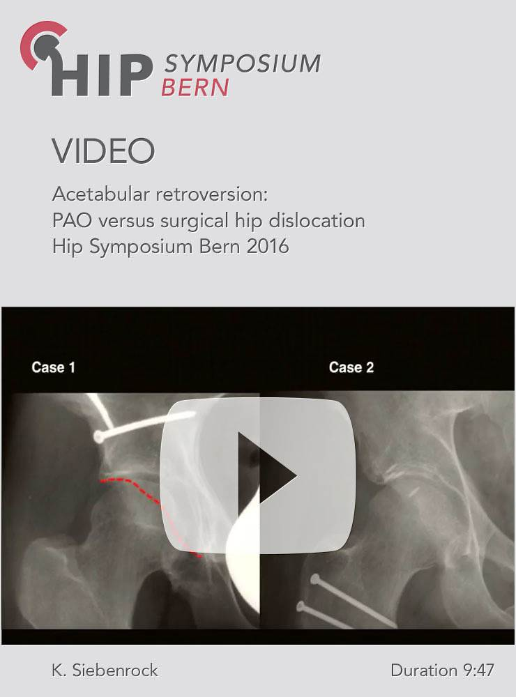 K. Siebenrock - Acetabular retroversion: PAO versus surgical hip dislocation - Hip Symposium 2016