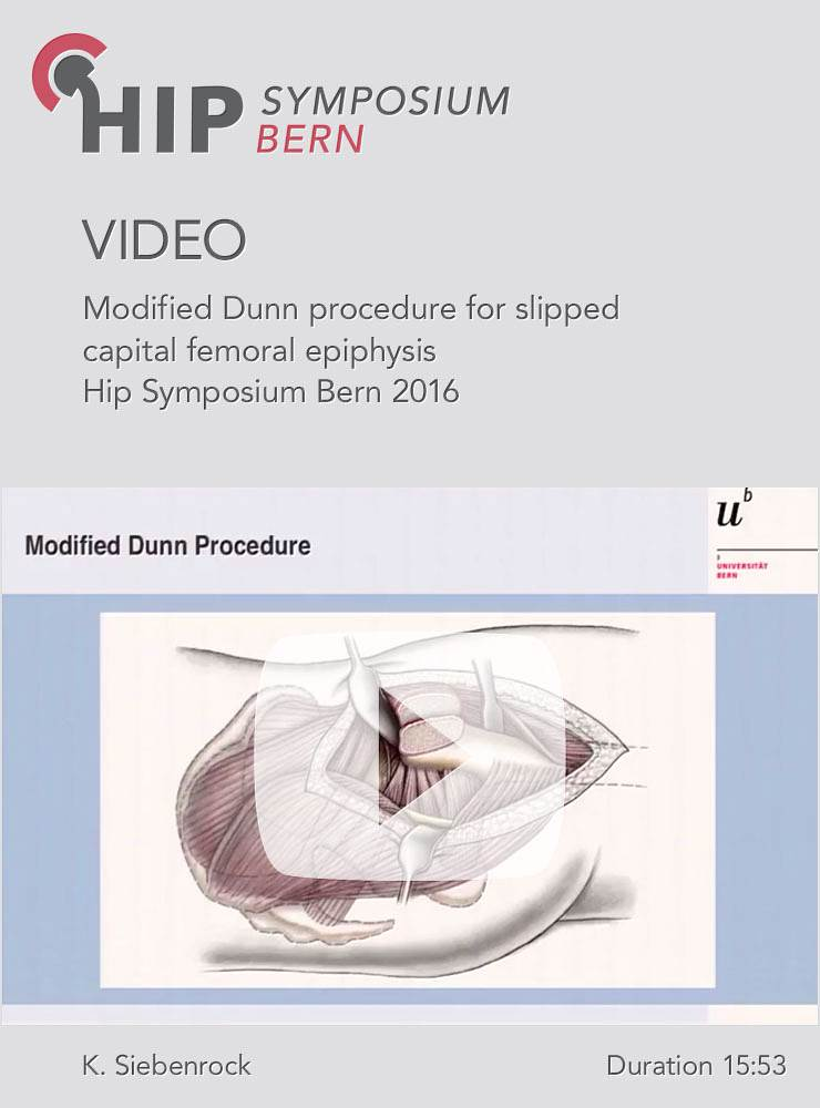 K. Siebenrock - Modified Dunn procedure for slipped capital femoral epiphysis - Hip Symposium 2016