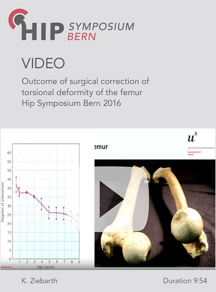 K. Ziebarth - Outcome of surgical correction of torsional deformity of the femur - Hip Symposium 201