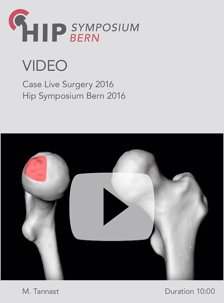 M. Tannast - Case Live Surgery 2016 - Hip Symposium 2016