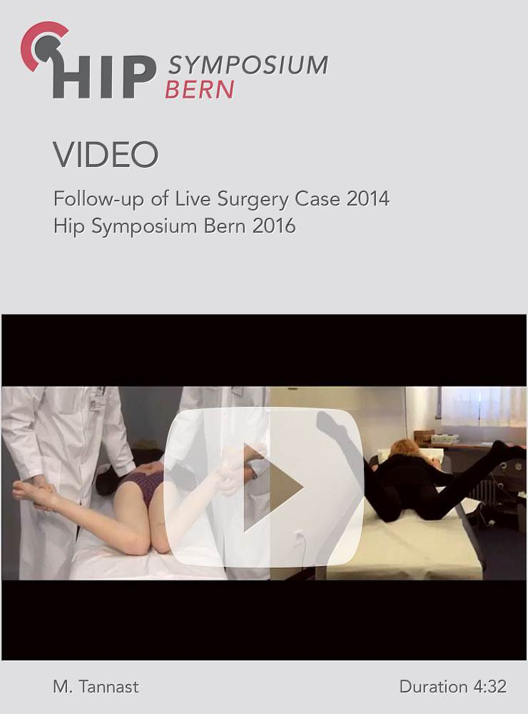 M. Tannast - Follow-up of Live Surgery Case 2014 - Hip Symposium 2016