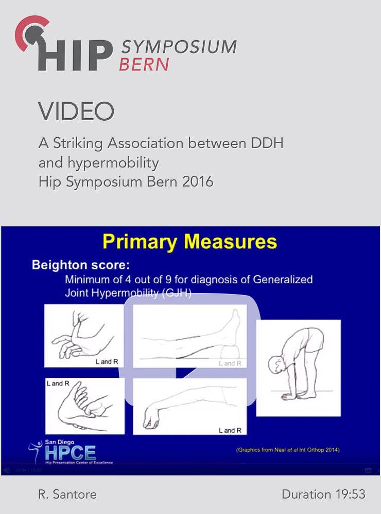 R. Santore - A Striking Association between DDH and hypermobility - Hip Symposium 2016