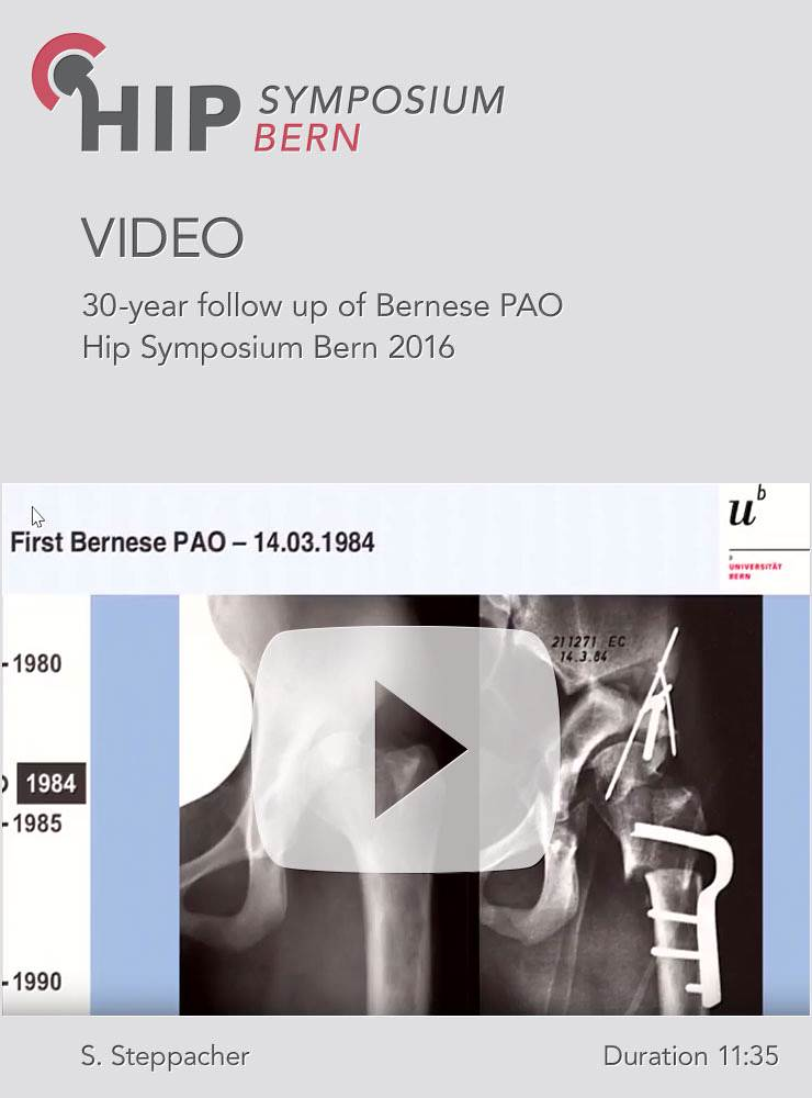S. Steppacher - 30-year follow up of Bernese PAO - Hip Symposium 2016