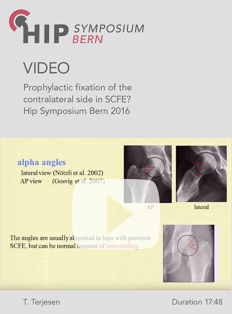 T. Terjesen - Prophylactic fixation of the contralateral side in SCFE? - Hip Symposium 2016