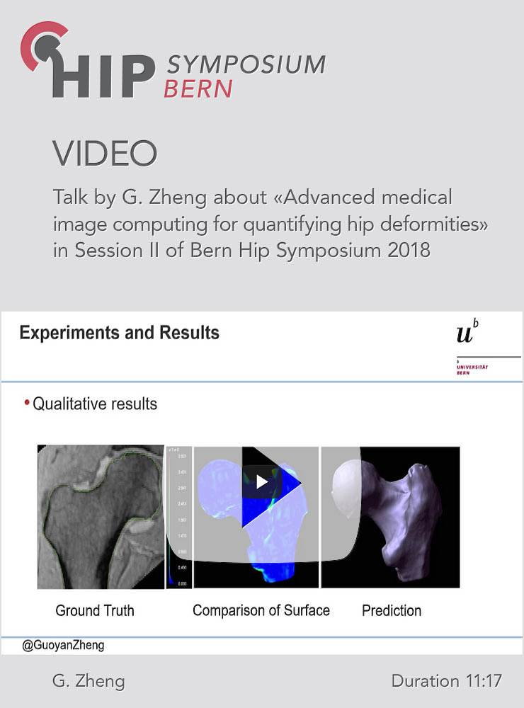 G. Zheng - Advanced medical image computing for quantifying hip deformities - Hip Symposium 2018