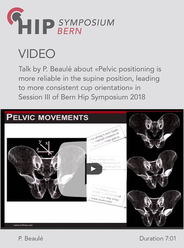 P. Beaulé - Pelvic positioning is more reliable in the supine position - Hip Symposium 2018