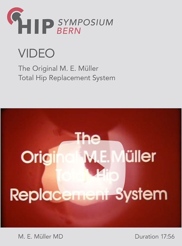 The original M E Müller Total Hip Replacement System Springer Verlag