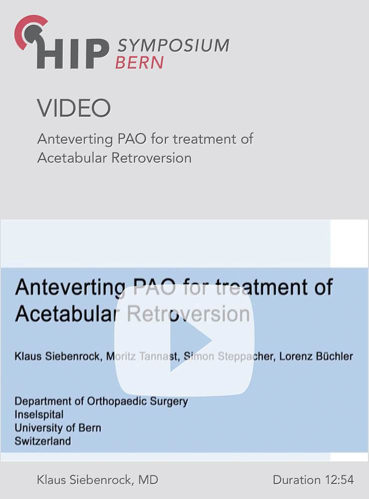 Anteverting PAO for treatment of acetabular retroversion Retroversion K A Siebenrock Bern