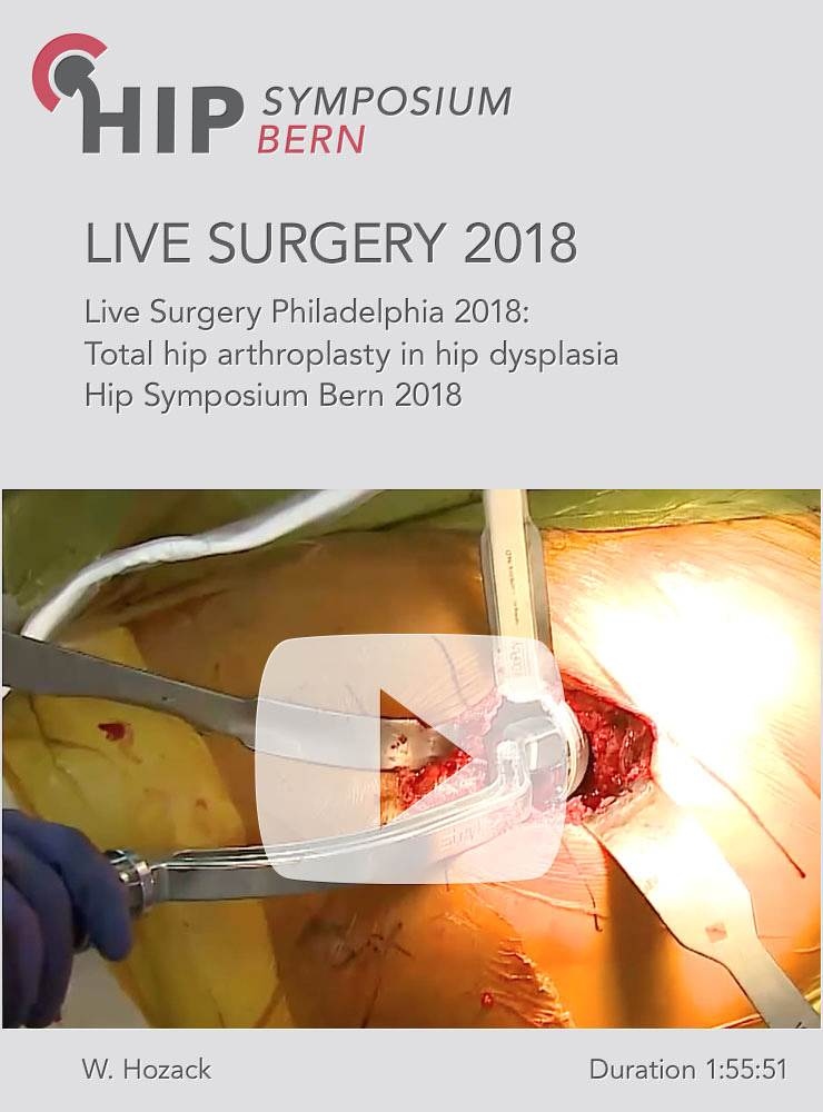 Live commented video Surgery 2018 / William Hozack