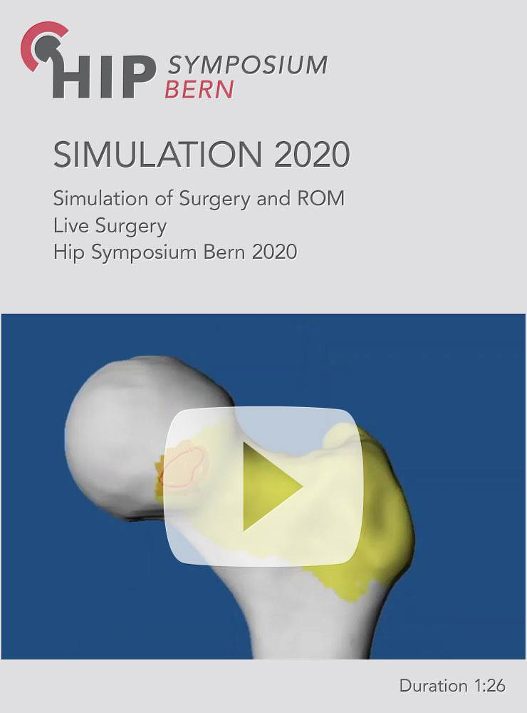 Simulation of Surgery and ROM Live Surgery Case HSB 2020