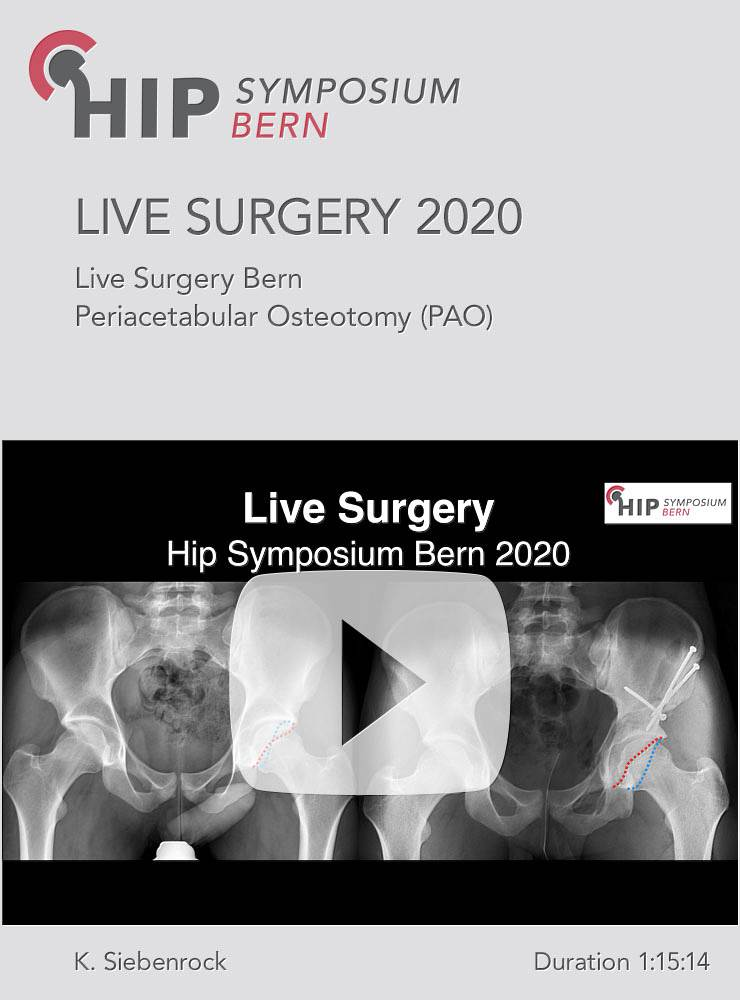 Live Surgery Hip Symposium 2020 / K. Siebenrock