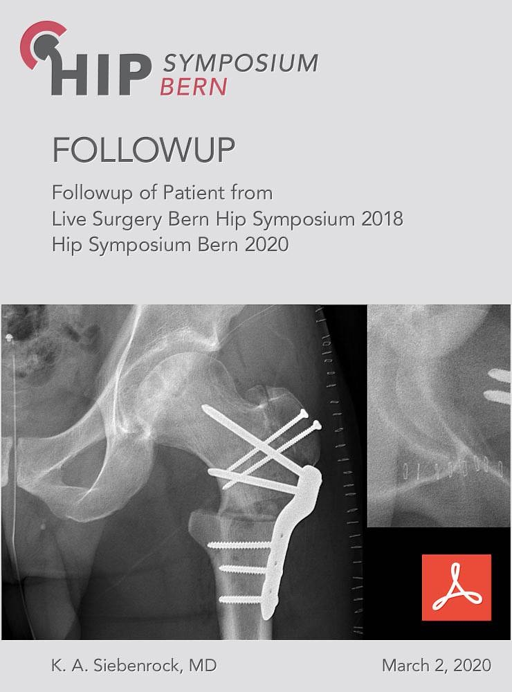 Followup of Patient from Live Surgery Bern Hip Symposium 2018