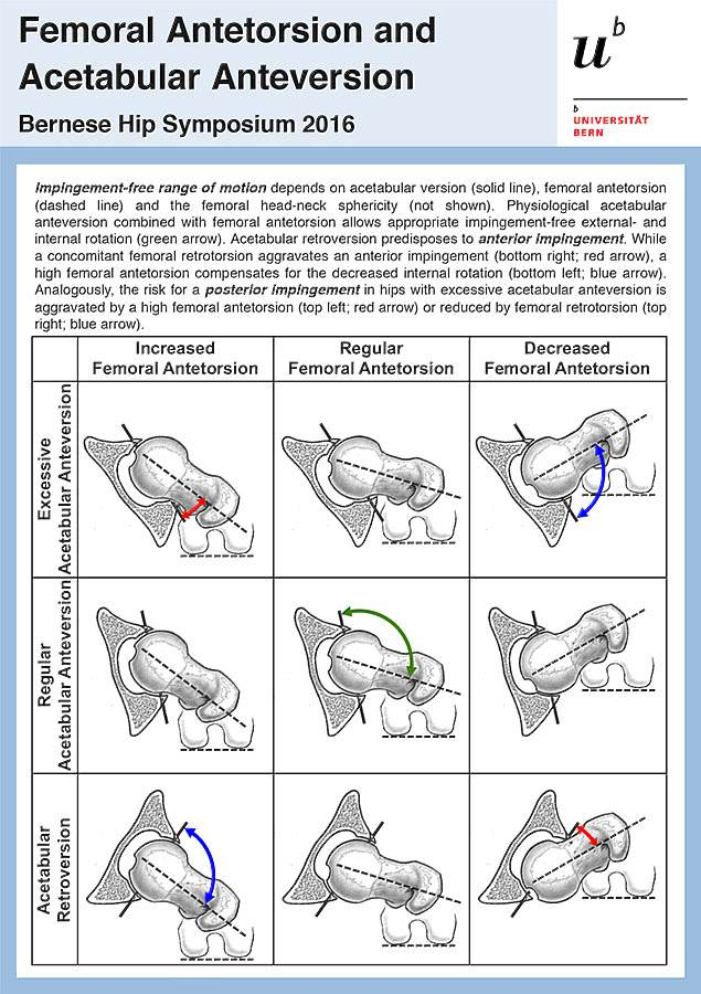 Femoral Antetorsion And Acetabular Anteversion Ber