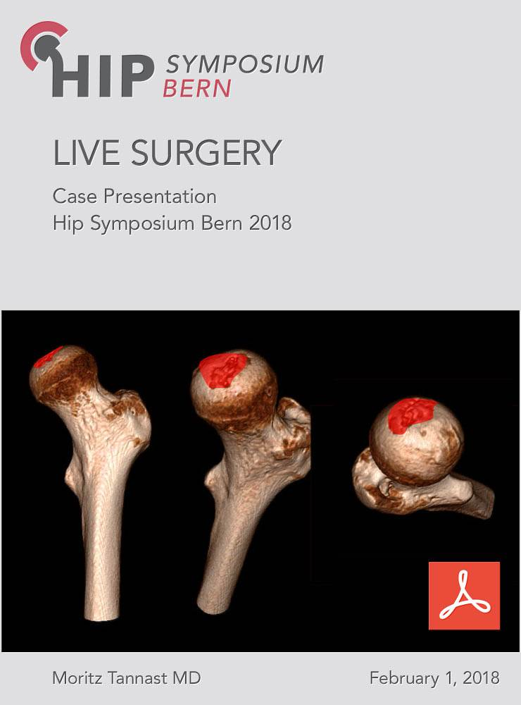 Case Presentation Live Surgery Bern