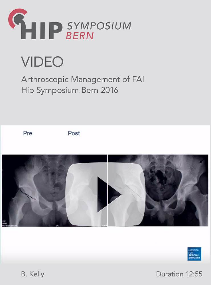 B. Kelly - Arthroscopic Management of FAI - Hip Symposium 2016