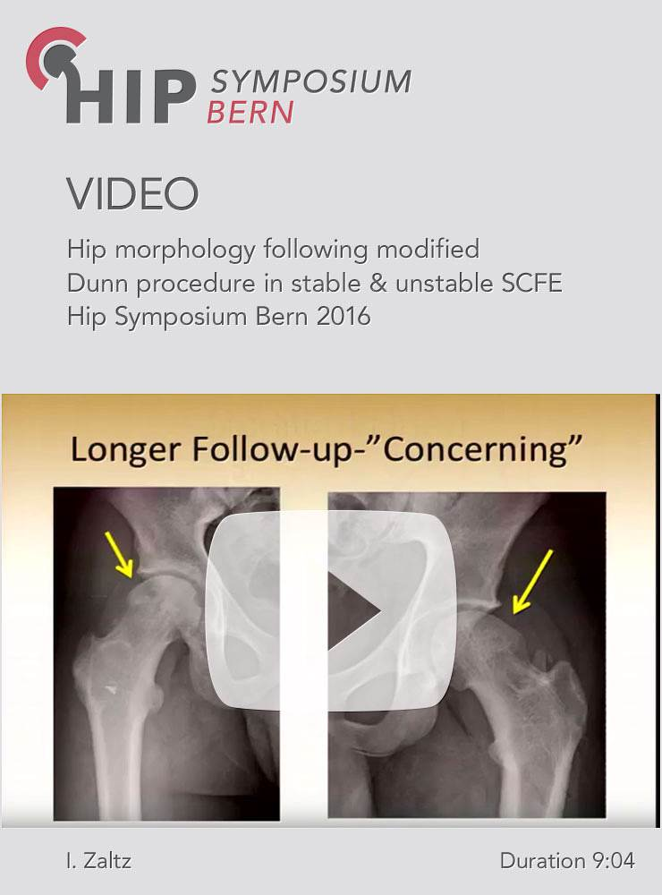 I. Zaltz - Hip morphology following modified Dunn procedure in stable & unstable SCFE - Hip Symposiu