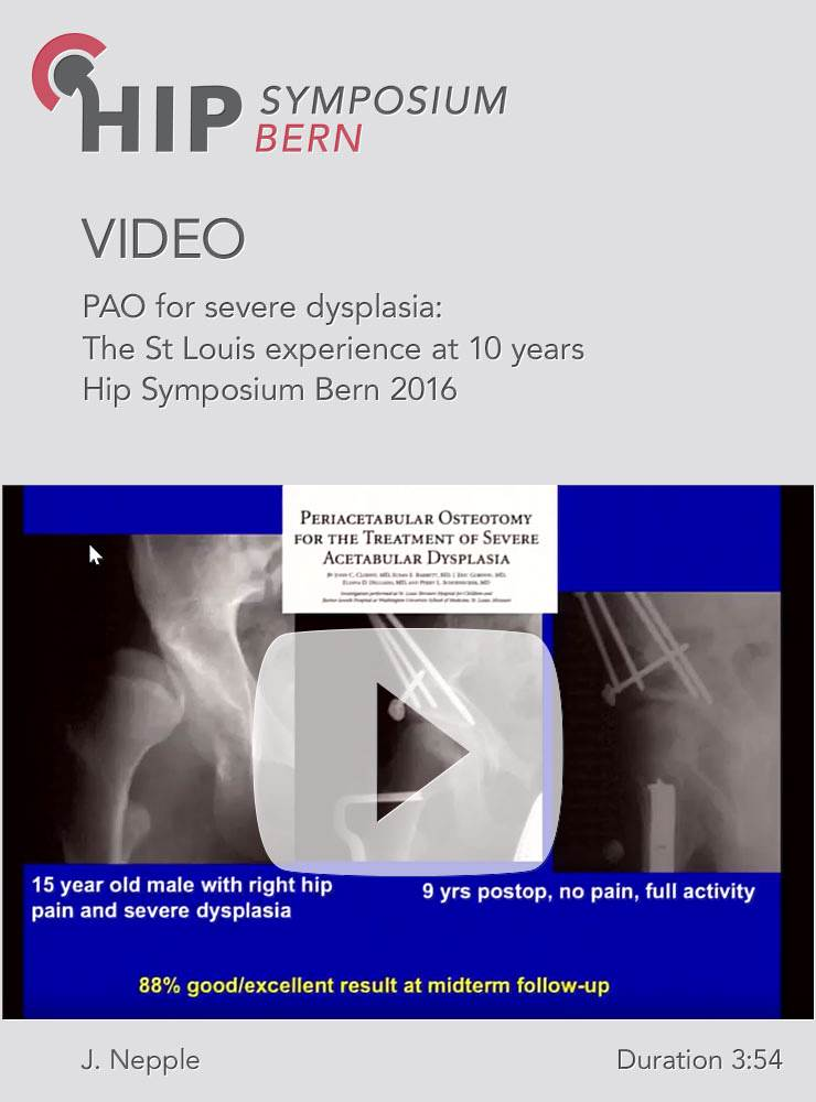J. Nepple - PAO for severe dysplasia: The St Louis experience at 10 years -  Hip Symposium 2016