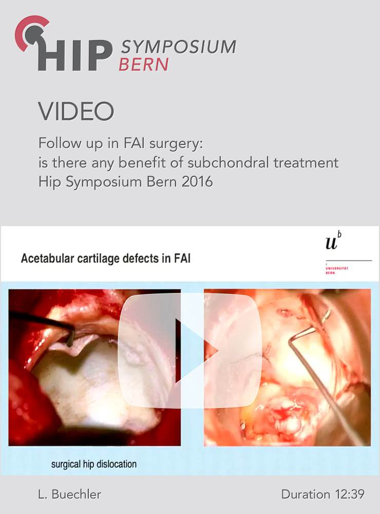 L. Buechler - Follow up in FAI surgery: is there any benefit of subchondral treatment - Hip Symposiu