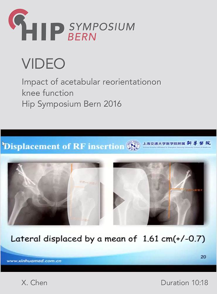 X. Chen - Impact of acetabular reorientationon knee function - Hip Symposium 2016