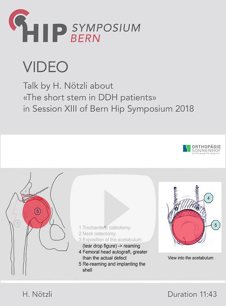 H. Nötzli - The short stem in DDH patients - Hip Symposium 2018