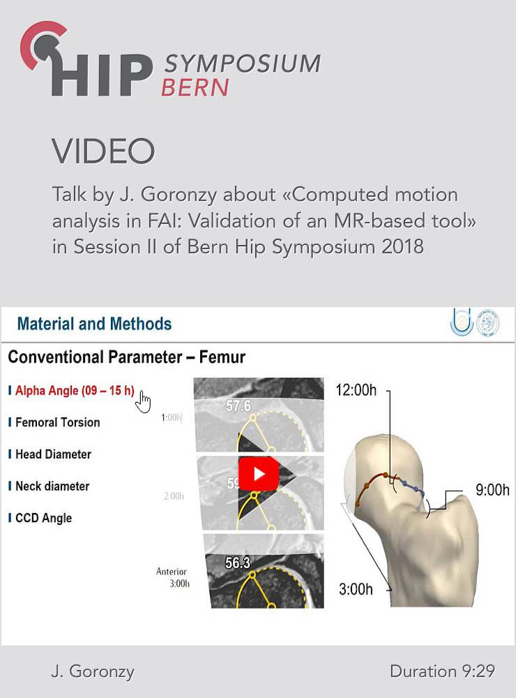 J. Goronzy - Computed motion analysis in FAI: Validation of an MR-based tool - Hip Symposium 2018