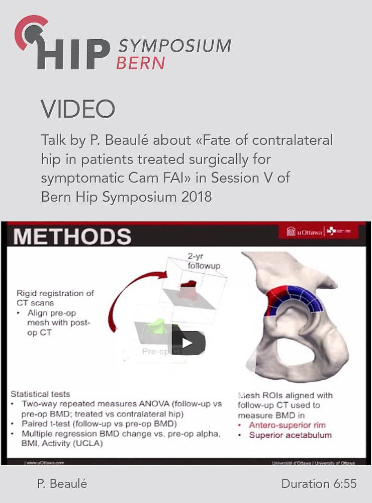 P. Beaulé - Fate of contralateral hip in patients treated surgically for symptomatic Cam FAI - Hip S