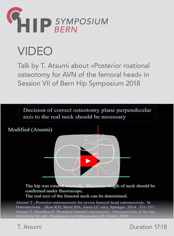T. Atsumi - Posterior roational osteotomy for AVN of the femoral head - Hip Symposium 2018