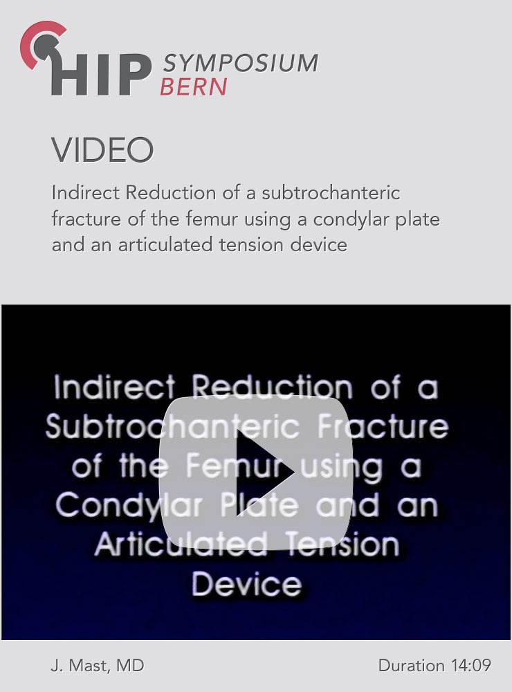 Indirect Reduction of a subtrochanteric fracture of the femur using a condylar plate and an articulated tension device