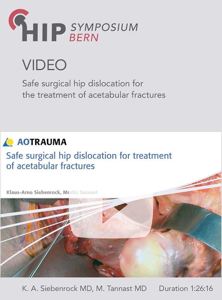Safe surgical hip dislocation for the treatment of acetabular fractures
