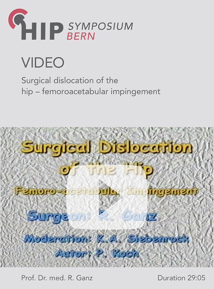 Surgical dislocation of the hip – femoroacetabular impingement