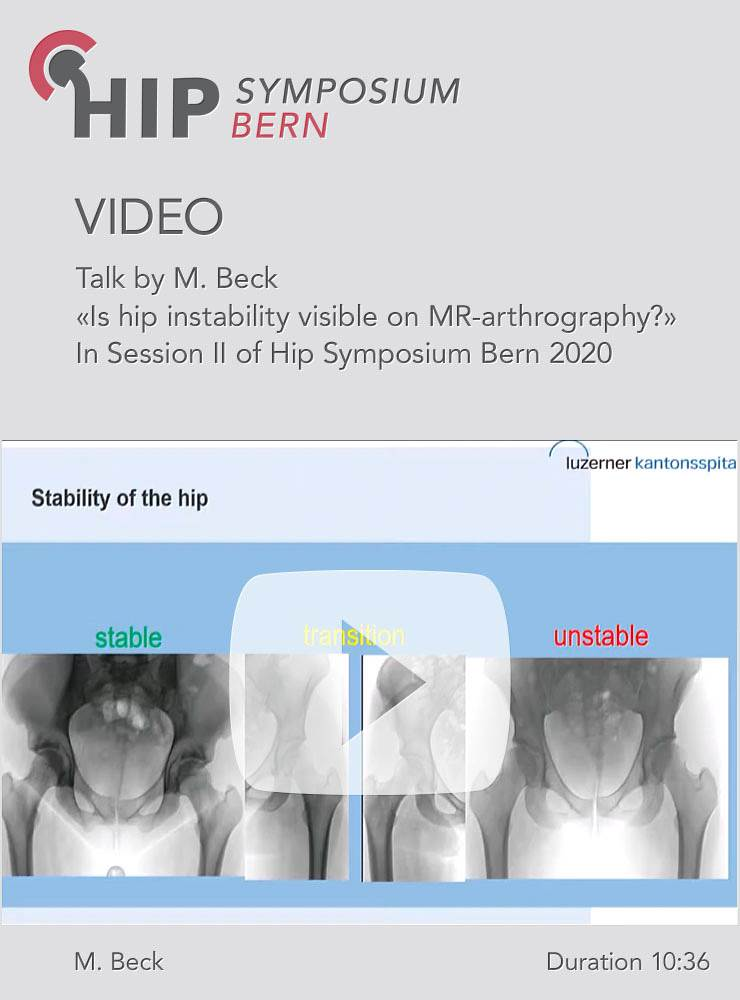 Is hip instability visible on MR-arthrography? / M. Beck