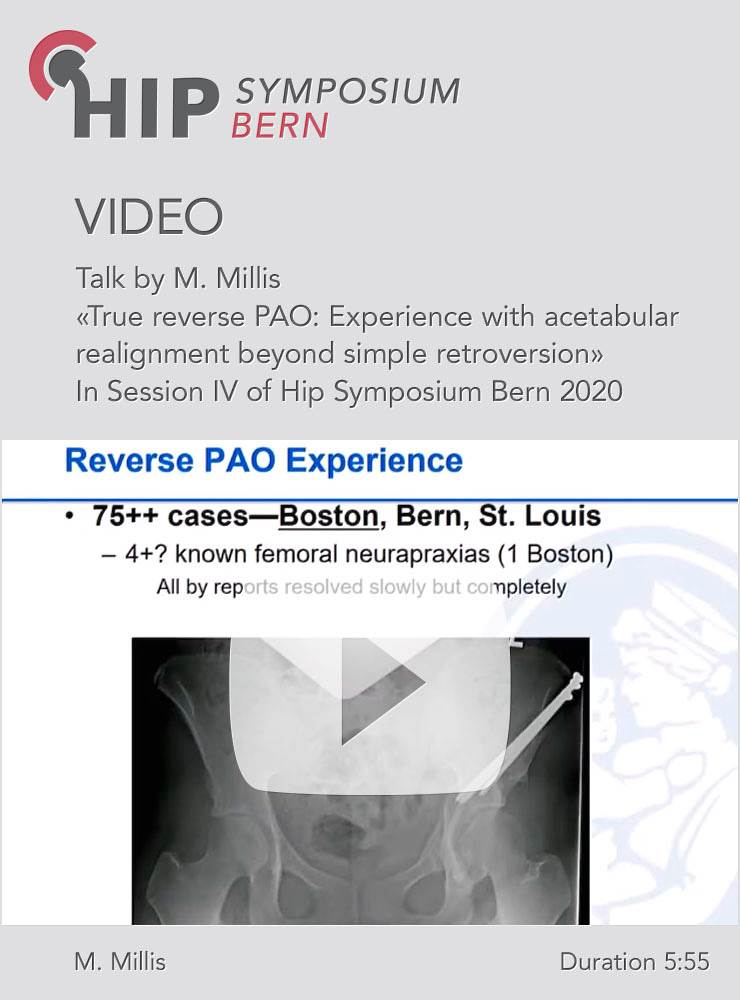 True reverse PAO: Experience with acetabular realignment beyond simple retroversion / M. Millis