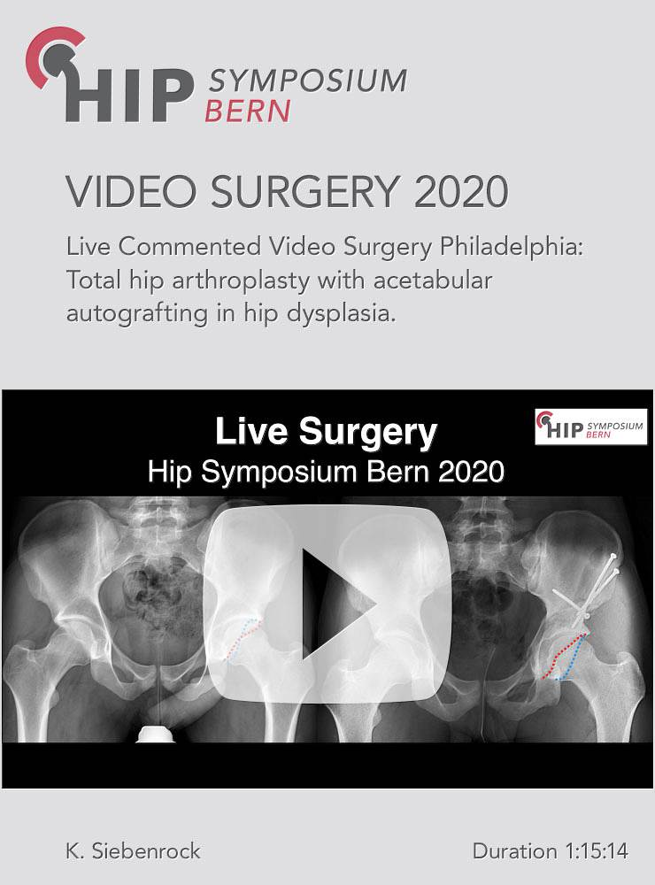Live commented video Surgery from Rothman Institute, Philadelphia / J. Parvizi