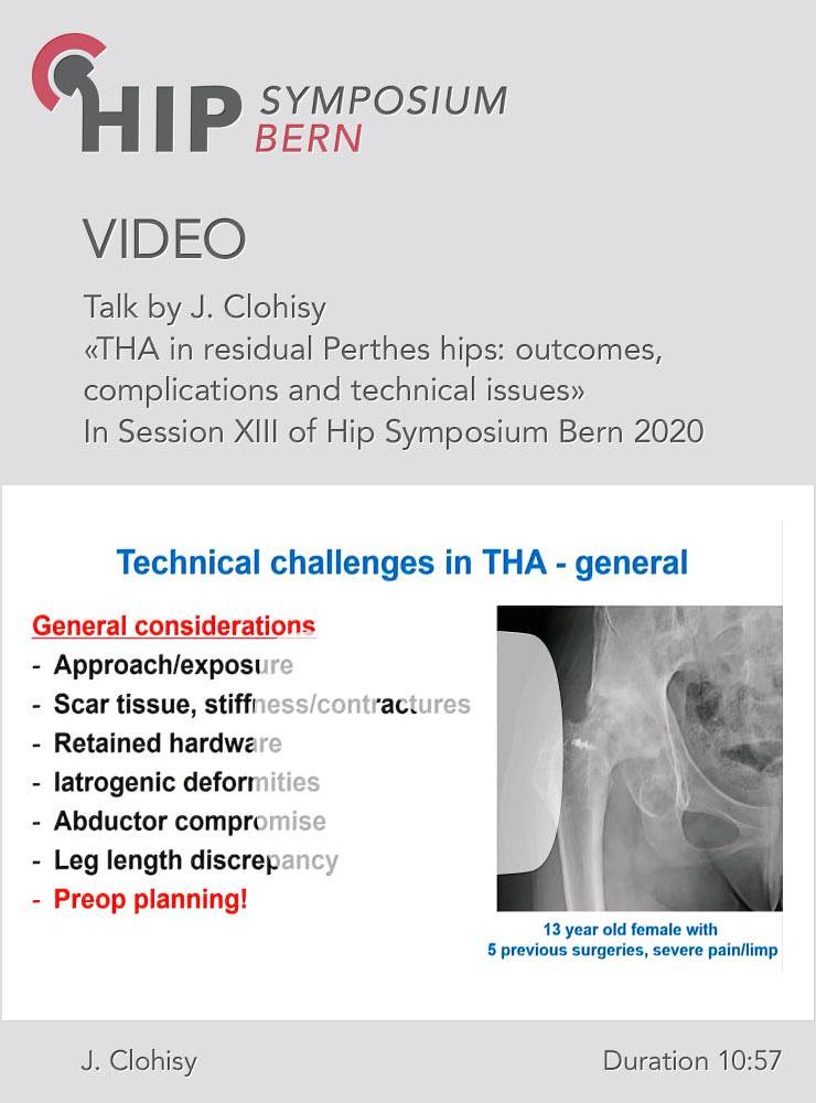 THA in residual Perthes hips: outcomes, complications and technical issues / J. Clohisy