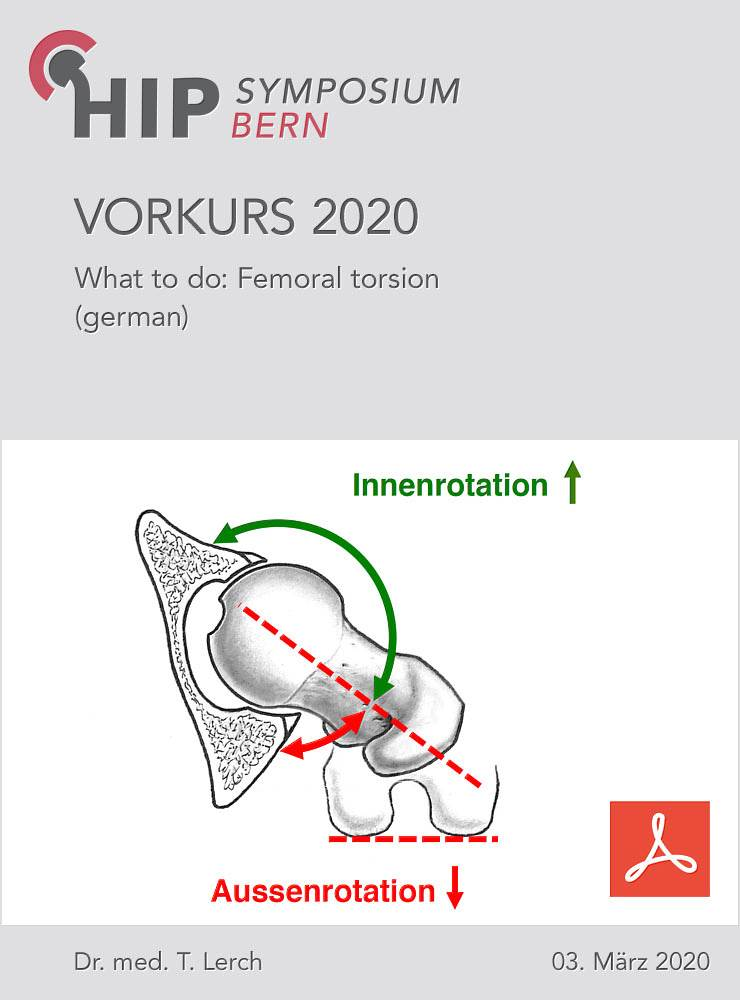 What to do: Femoral torsion